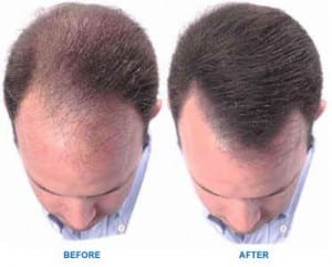 Which Hair Loss Treatments Work Top Hair Loss Products Reviewed